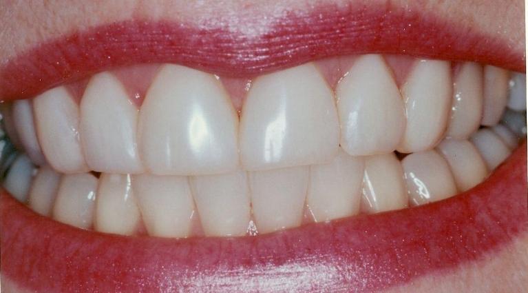 lower teeth veneers new haven ct dentist smile gallery of our patients