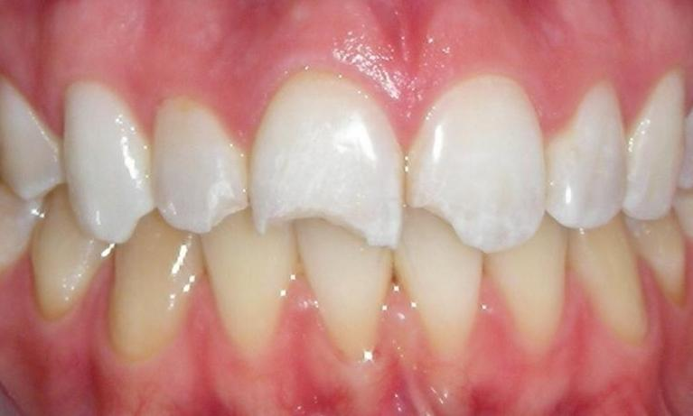 Repair-of-fractured-incisor-with-composite-resin-Before-Image