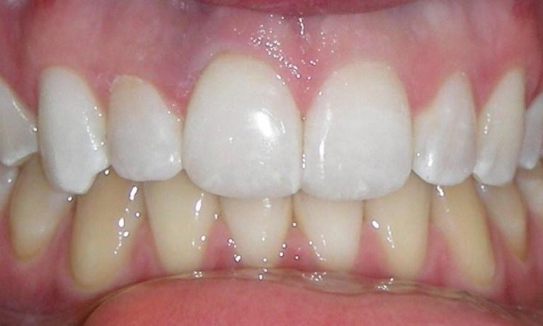 Repair-of-fractured-incisor-with-composite-resin-After-Image