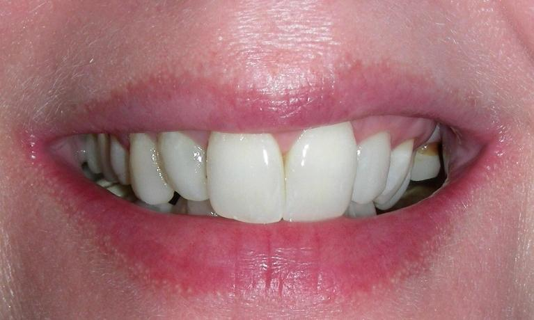 Smile-Makeover-with-Composite-Resin-Veneers-and-Reshaping-Before-Image