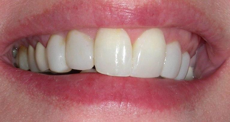 Smile-Makeover-with-Composite-Resin-Veneers-and-Reshaping-After-Image