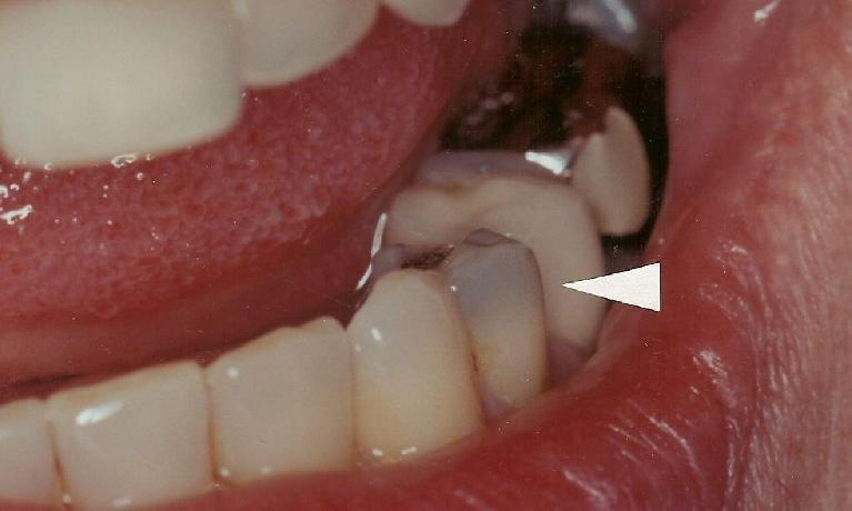 Defective-Silver-Amalgam-Replacement-with-Bonded-Composite-Before-Image
