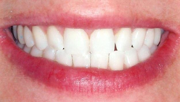 Space-Between-Lower-Teeth-Eliminated-with-Composite-Resin-After-Image