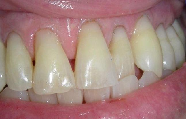 Repair-of-Tooth-Wear-with-Composite-Resin-After-Image
