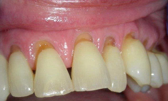 Repair-of-Tooth-Wear-with-Composite-Resin-Before-Image